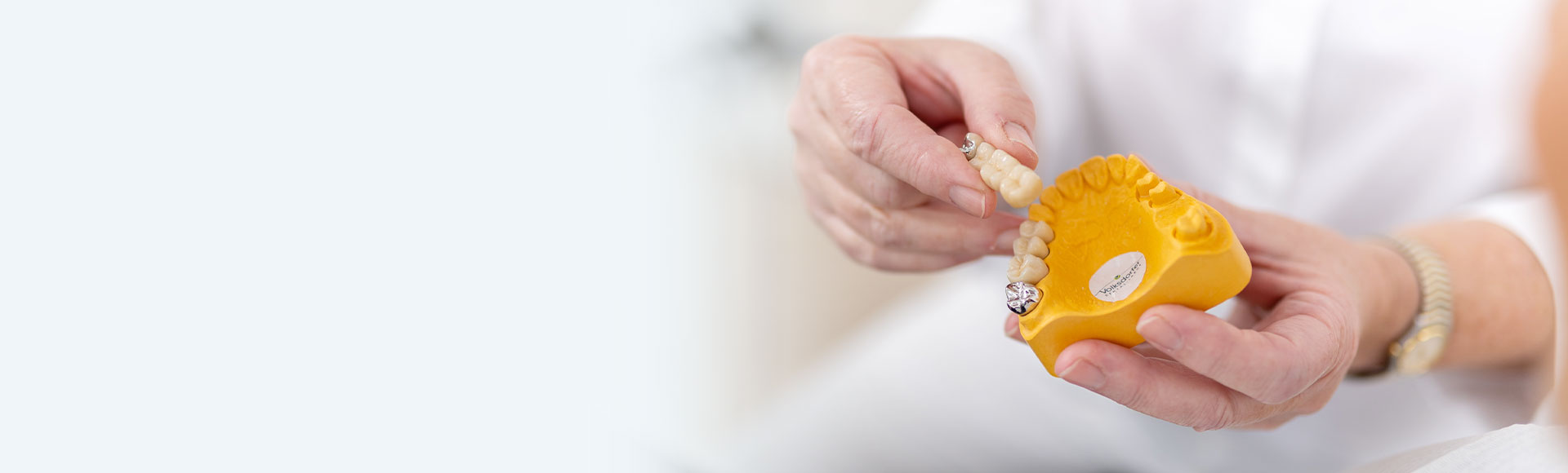 Kronen und Brücken aus einer Hand bei ihrem Zahnarzt Ddent
